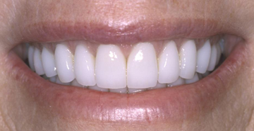 cosmetic dentistry boise